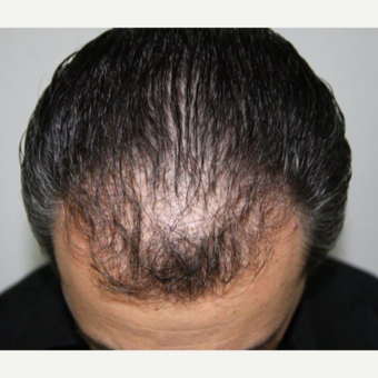 Repair Case: FUE Hair Restoration with Dr. Baubac before 3645929