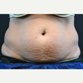 55-64 year old woman treated with CoolSculpting before 2404298
