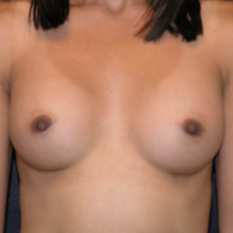 45-54 year old woman treated with Sientra Breast Implants after 3454487