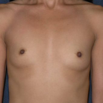 45-54 year old woman treated with Sientra Breast Implants before 3454487