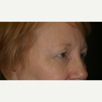 This 58 year old female received an Upper Blepharolplasty with CO2 laser to the lower eyelids before 3206610