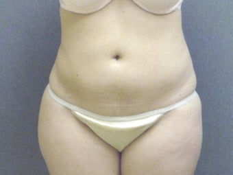 SmartLipo tummy and hip roll - laser assisted after 607520