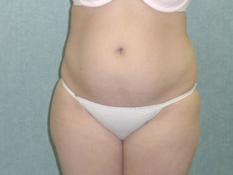 SmartLipo tummy and hip roll - laser assisted before 607520