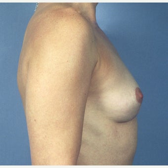 35-44 year old woman treated with Breast Implant Removal and Mastopexy (Breast Lift) 1819342