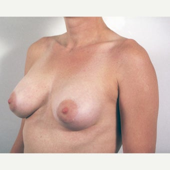 35-44 year old woman treated with Breast Implant Removal and Mastopexy (Breast Lift) before 1819342