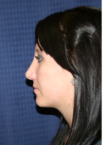 Rhinoplasty after 213164