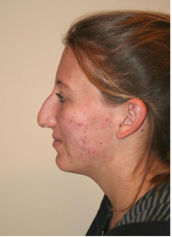 Rhinoplasty before 213164