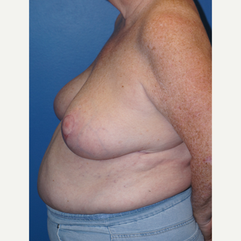 55-64 year old woman treated with Breast Reduction after 3326151
