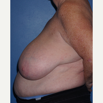 55-64 year old woman treated with Breast Reduction before 3326151