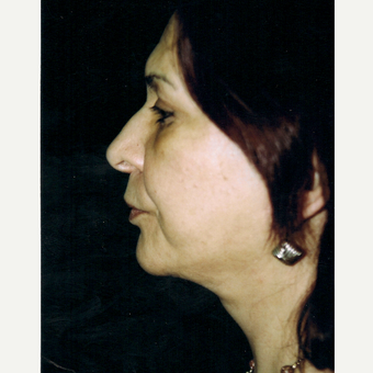 55-64 year old woman treated with Facelift after 3271982