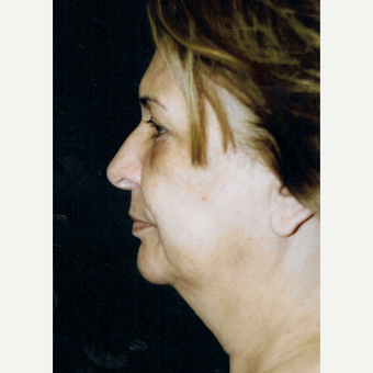 55-64 year old woman treated with Facelift before 3271982