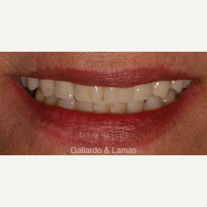 65-74 year old woman treated with All-on-4 Dental Implants after 3093908