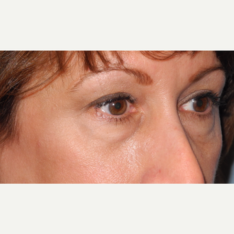 45-54 year old woman treated with Lower Eyelid Surgery before 3703070