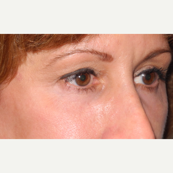 45-54 year old woman treated with Lower Eyelid Surgery after 3703070
