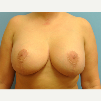 31  year old woman treated with Breast Implant Revision, Mastopexy and implant exchange, 430 cc after 3506912