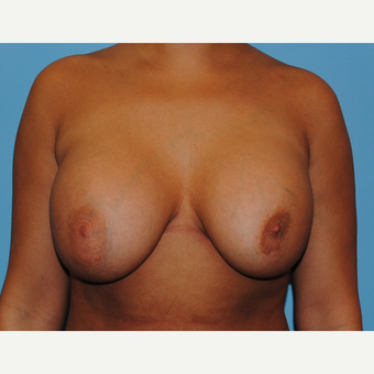 31  year old woman treated with Breast Implant Revision, Mastopexy and implant exchange, 430 cc before 3506912