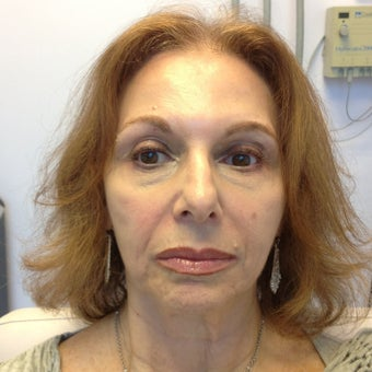 55-64 year old woman treated with Liquid Facelift before 2293273