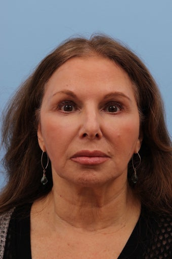 55-64 year old woman treated with Liquid Facelift after 2293273