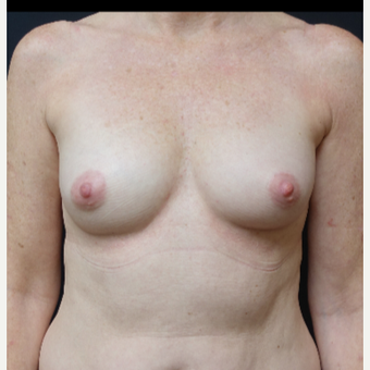 35-44 year old woman treated with Breast Implants before 3280302