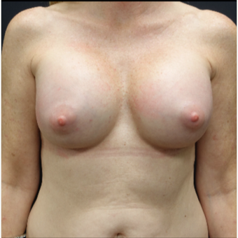 35-44 year old woman treated with Breast Implants after 3280302