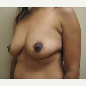 Breast Augmentation and Removal of Fatty Axilla (Armpit) Tissue on 34 year old patient before 2173070