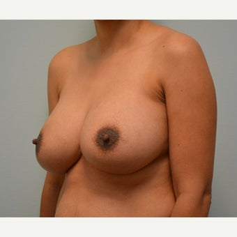 Breast Augmentation and Removal of Fatty Axilla (Armpit) Tissue on 34 year old patient after 2173070