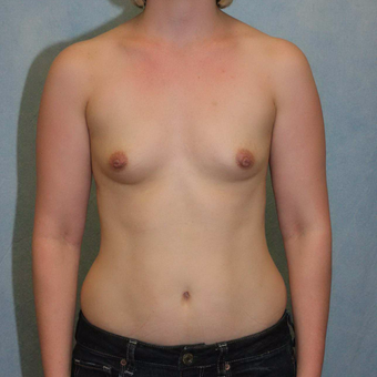 25-34 year old woman treated with Breast Augmentation before 3486977