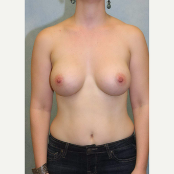 25-34 year old woman treated with Breast Augmentation after 3486977
