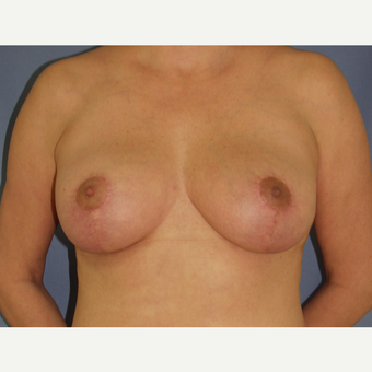 35-44 year old woman treated with Breast Lift after 3194280