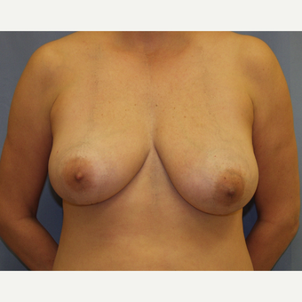35-44 year old woman treated with Breast Lift before 3194280