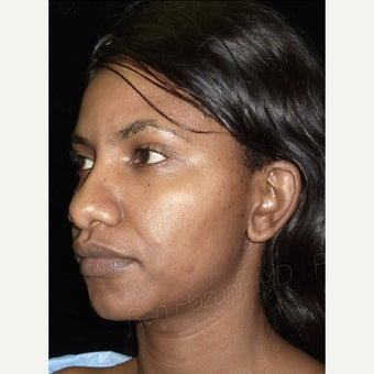25-34 year old woman treated with African American Rhinoplasty 1741587