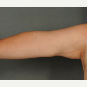 45-54 year old man treated with Arm Lift after 2975573