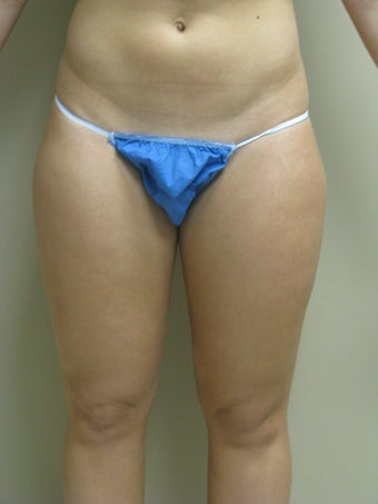 29 year old female liposuction to inner and outer thighs  after 1064889