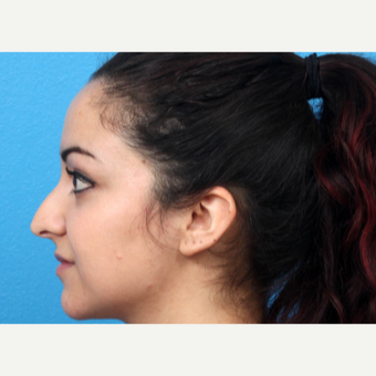 18-24 year old woman treated with Nose Surgery before 3366813