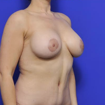 35-year-old woman treated with Breast Augmentation after 3371568