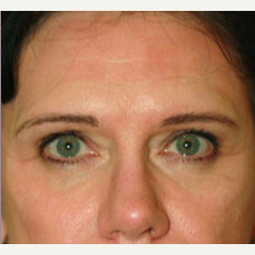 35-44 year old woman treated with Botox before 3604278