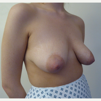 25-34 year old woman treated with Breast Lift before 3427957