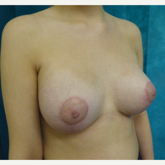 25-34 year old woman treated with Breast Lift after 3427957