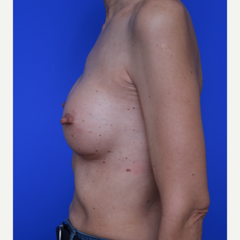 54- year old woman treated with Breast Implants after 3108829