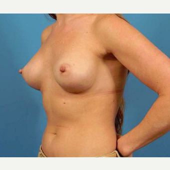 25-34 year old woman treated with Breast Implants after 3787008
