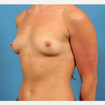 25-34 year old woman treated with Breast Implants before 3787008