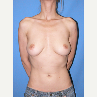 25-34 year old woman treated with Breast Implants before 3105319