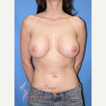 25-34 year old woman treated with Breast Implants after 3105319