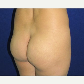 25-34 year old woman treated with Brazilian Butt Lift 1799259