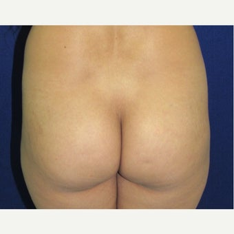 25-34 year old woman treated with Brazilian Butt Lift before 1799259