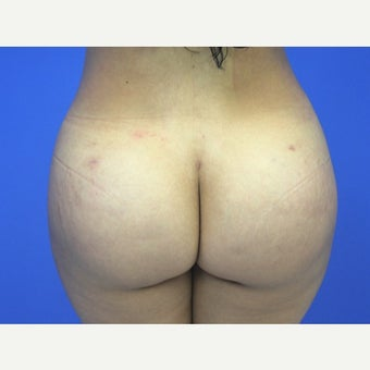 25-34 year old woman treated with Brazilian Butt Lift after 1799259