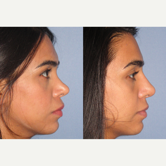 18-24 year old woman treated with Revision Rhinoplasty after 3521364