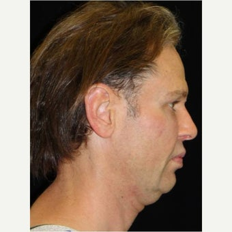 35-44 year old man treated with Cheek Augmentation before 1706860