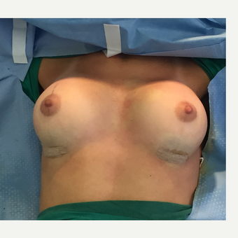 18-24 year old woman treated with Breast Augmentation after 3204258