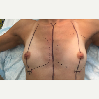 18-24 year old woman treated with Breast Augmentation before 3204258